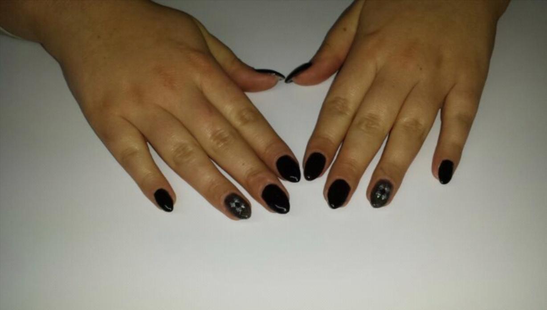 Das preiswerte Mittel von gribka auf den Fingern